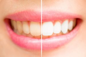 Discolored teeth vs. whitened teeth.