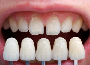are-candidate-porcelain-veneers-in-hamden-learn