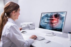 dental scan on screen