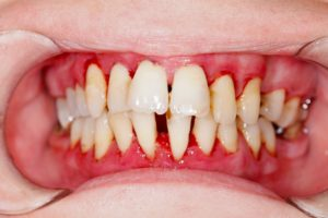 patient with gum disease