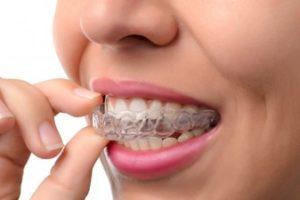 Woman placing a clear retainer onto her teeth